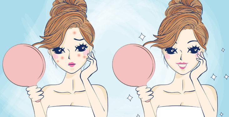problemy skórne trądzik