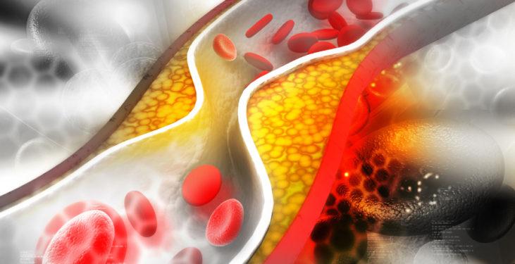 Cholesterol powodujący miażdżycę